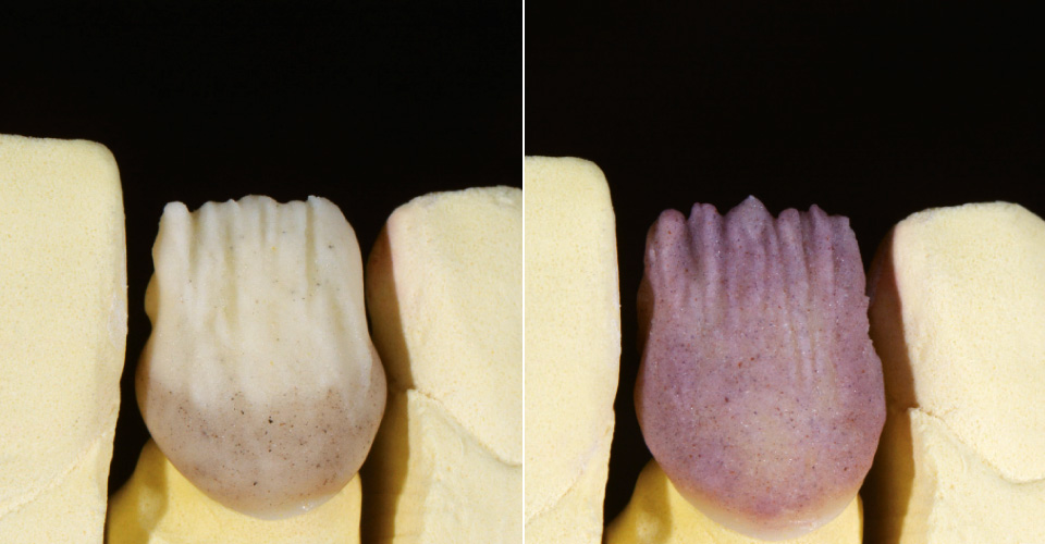 Abb. 4  Zervikale Fluoreszenz (rötlich/bräunlich) wurde mit EL3, ein hellerer inzisaler Effekt mit EL1 erzeugt.  Abb. 5  Für einen warmen Farbton und die Kontrolle der Helligkeit wurde CHROMA PLUS 2 geschichtet.