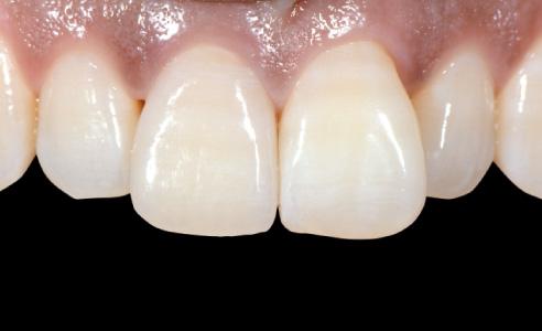 Abb. 11 Nachher: Die finale Restauration an Zahn 11; die Patientin zeigte sich zufrieden mit dem hoch- ästhetischen Ergebnis.