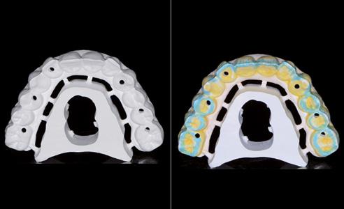 Abb. 9  Neue, anatomisch vorgeformte  Variante aus hochtransluzentem Zirkondioxid.   Abb. 10 Einfärbung von Farbverläufen in Zahn- und Zahnfleischbereichen.