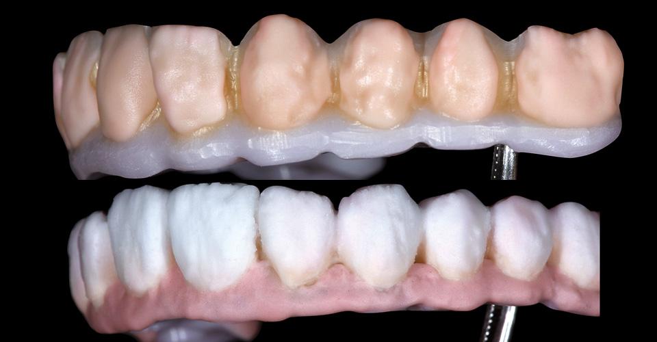 Abb. 12 Verblendung der Zahnfacetten mit BASE DENTINE A2 und A3.  Abb. 13 Finale Schichtung mit Schmelz- (ENL, EO1) und Gingivamassen (G3).