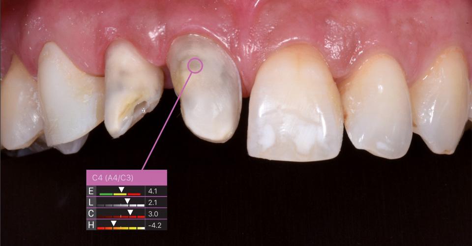 Abb. 1  Nach einem Unfall waren die Zähne in regio 11 bis 13 devital und sollten mit Veneers versorgt werden. Da die Zahnstümpfe 11 und 12 zu grau waren, wurden sie zunächst durch internes Bleaching vorbehandelt.