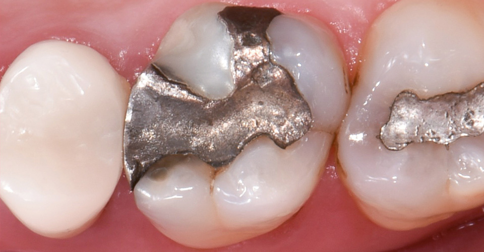 Abb. 2  Insuffiziente Amalgamfüllung an Zahn 16.