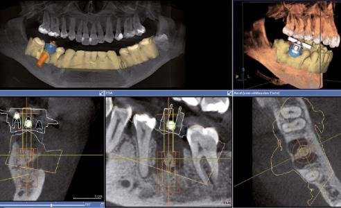 Abb. 2 Die virtuelle Implantation ermöglicht ein geführtes Bohrprotokoll.