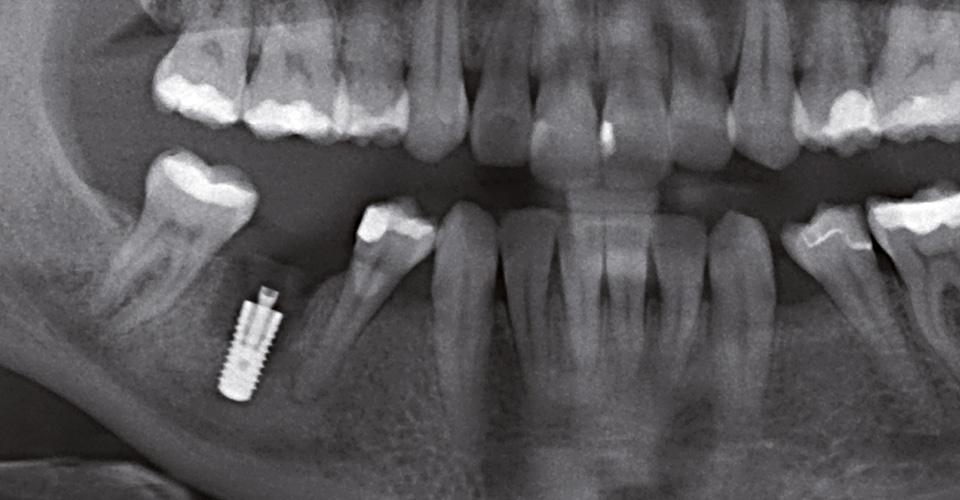 Abb. 3 Zustand nach Implantation regio 46.