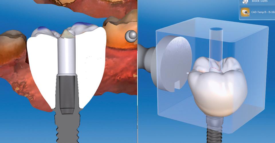 Abb. 5  Die virtuelle Gestaltung des Emergenzprofils stabilisiert und formt die gingivalen Strukturen.  Abb. 6  Virtuelle Lage der Abutmentkrone im VITA CAD-Temp IS Rohling.