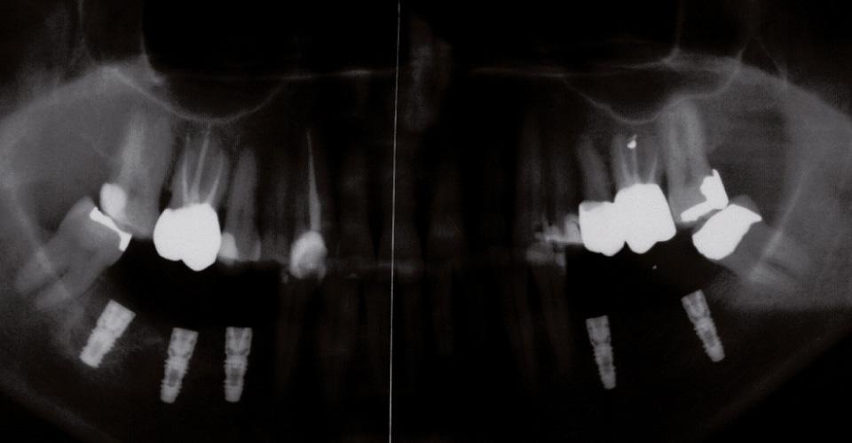 Abb. 1 Röntgenstatus der Ausgangssituation.