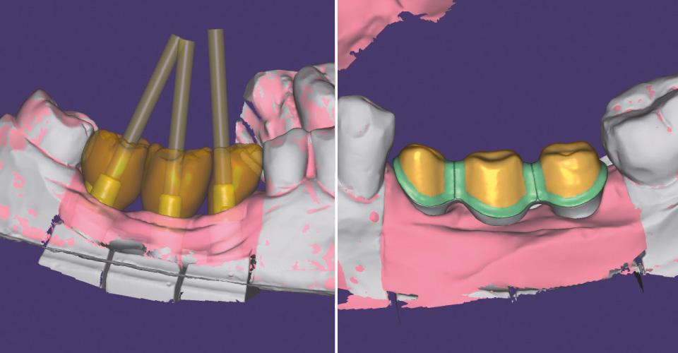Abb. 3  Konstruktion der Implantatkronen in regio 45, 46 und 47.  Abb. 4  Design der Gerüststruktur.