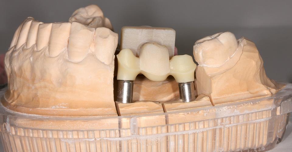 Abb. 5  Die Gerüststruktur wird aus voreingefärbtem Zirkondioxid gefräst.