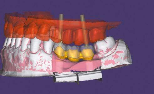 Abb. 6  Nach Scan des Gerüsts werden darauf die Verblendstrukturen konstruiert.