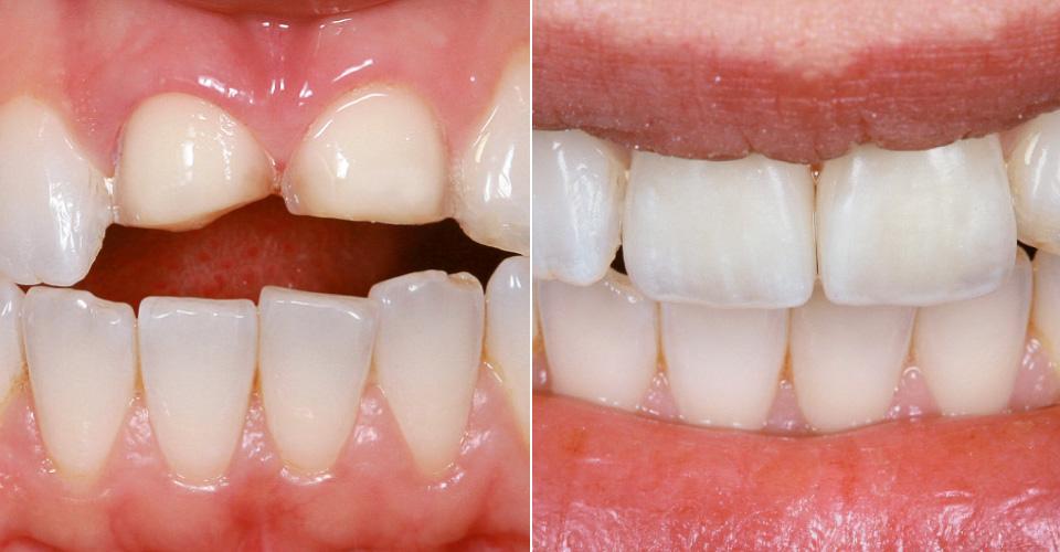 Abb. 1 Ausgangssituation: Klinische Situation nach Veneerpräparation an 11 und 21.  Abb. 2 Ergebnis: Das Lachen mit natürlichem Farb- und Lichtspiel.