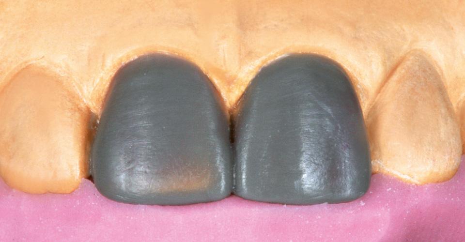 Abb. 3 Situationsmodell mit idealisiertem Wax-up und palatinalem Silikonschlüssel.