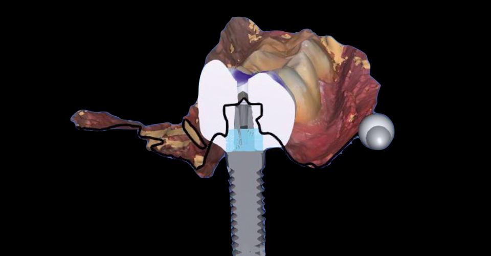 Abb. 4a Die Implantatkrone wurde virtuell konstruiert...