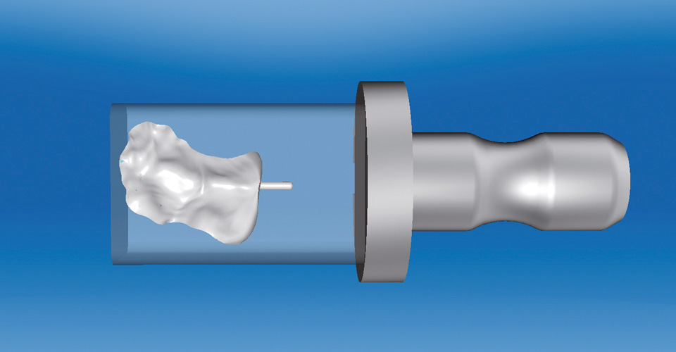Abb. 8  In der Schleifvorschau wurden die Konstruktionen, hier das Inlay für Zahn 26, optimal im Rohling platziert.