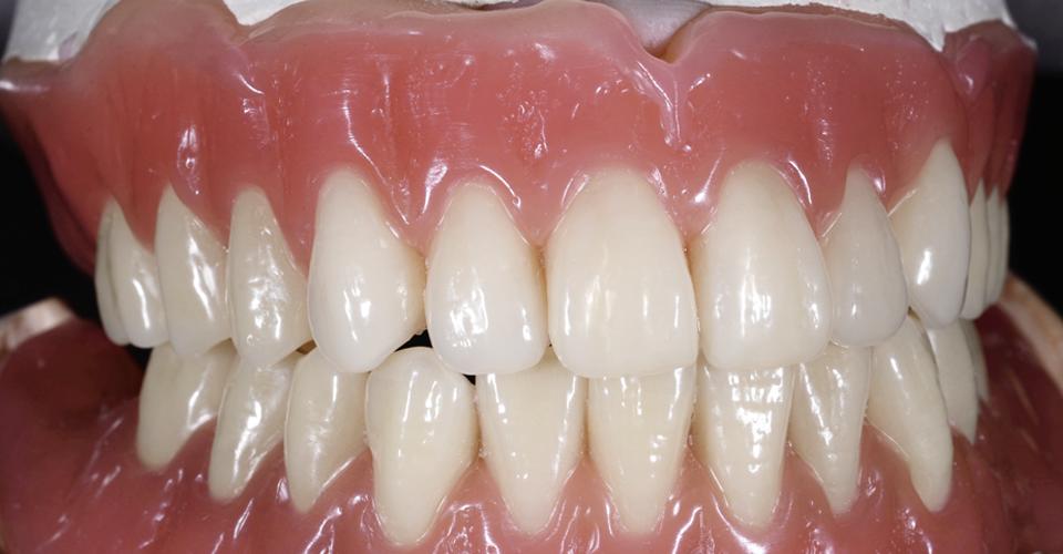 VITAPAN EXCELL: Para lograr resultados predecibles - Dental Visionist