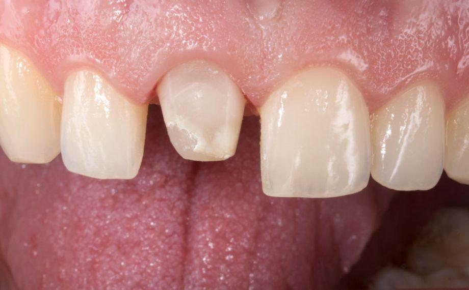 Fig. 3: Durante la preparación del diente 11 se retiró casi por completo la obturación de composite.