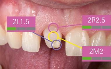 Fig. 7: Dado que el color del muñón influye en el efecto cromático de la restauración, se llevó a cabo una medición de tres puntos.