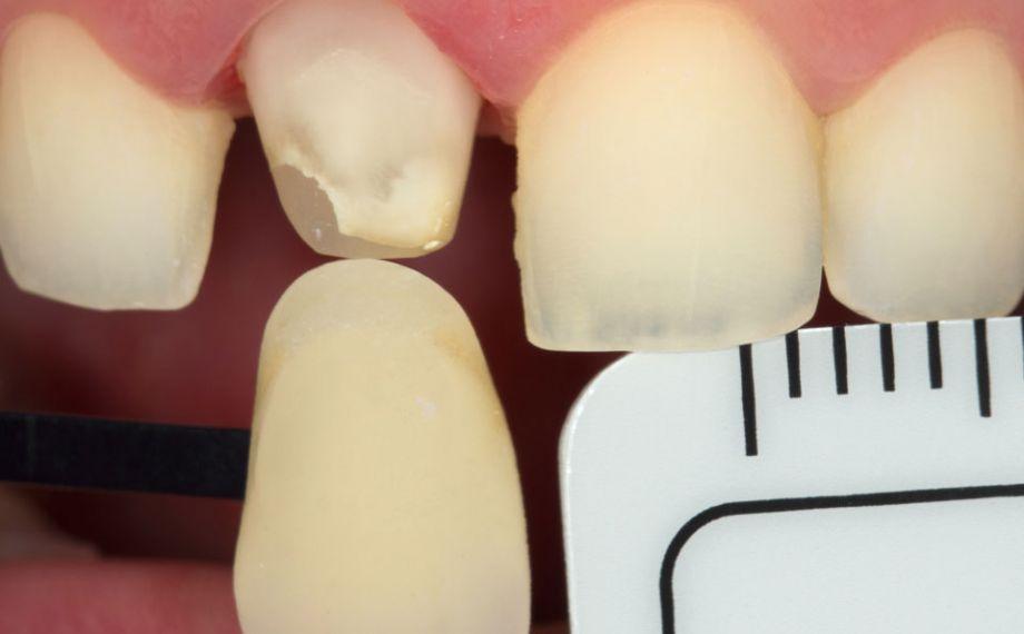 Fig. 8: Una fotografía digital con filtro polarizador y la varilla de colores seleccionada proporcionó información individualizada al protésico dental.