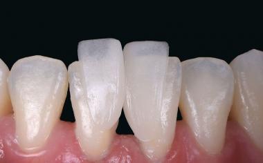 Fig. 6: Ya durante la prueba clínica en boca se manifestó el pronunciado efecto camaleón del material cerámico híbrido.