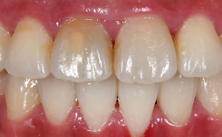 Fig. 1: Situación de partida: El incisivo central derecho superior endodonciado presentaba decoloración.
