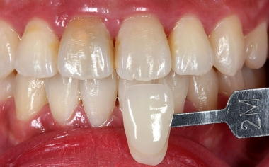 Fig. 3: Una fotografía digital con la correspondiente varilla de colores proporcionó información individualizada a la protésica dental.