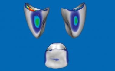 Fig. 5: En el software CEREC Premium 4.4.4 se pudieron modificar las zonas de punto de contacto oclusales y proximales.