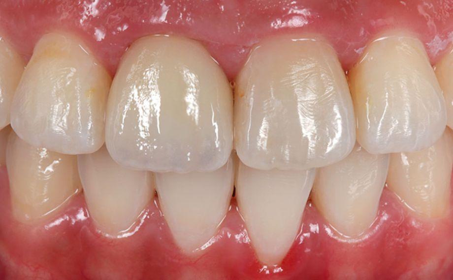 Fig. 9: El resultado monolítico altamente estético tras la colocación totalmente adhesiva.