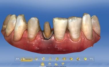 Fig. 7: También para la preparación de la corona completa en el diente 41 se estableció digitalmente el límite de la preparación.