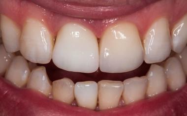Fig. 10: Tras la cocción de cristalización de ambas coronas completas de cerámica vítrea, se procedió a su prueba en boca.
