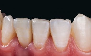 Fig. 12: La corona de cerámica sin metal de VITA SUPRINITY PC se integró de manera excelente en la sustancia dental remanente en cuanto a la morfología y el color.