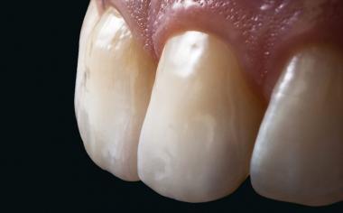 Fig. 13 La morfología y la textura superficial de ambas restauraciones de cerámica sin metal ya no se distinguían de los dientes adyacentes naturales.