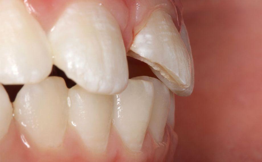 Caso clínico 1Fig. 2: La pulpa no estaba expuesta, y fue posible protegerla mediante un apósito adhesivo.