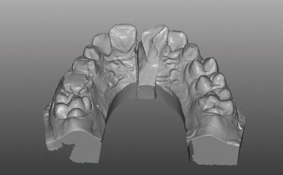 Caso clinico 1Fig. 5: El recorrido palatino expuesto de la fractura tras la gingivectomía en el modelo virtual.