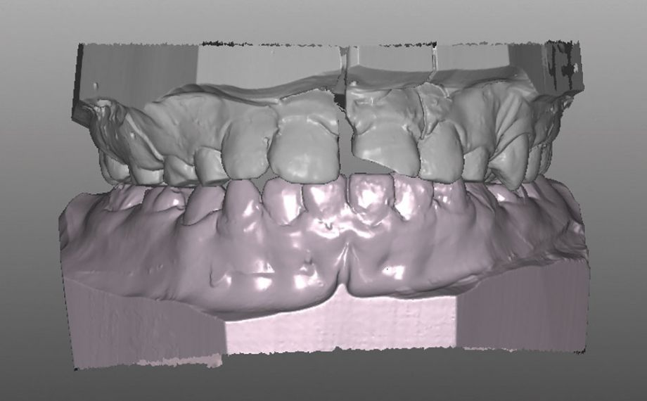 Caso clinico 1Fig. 6: La fractura longitudinal de la corona vista desde vestibular en el modelo maestro digitalizado.