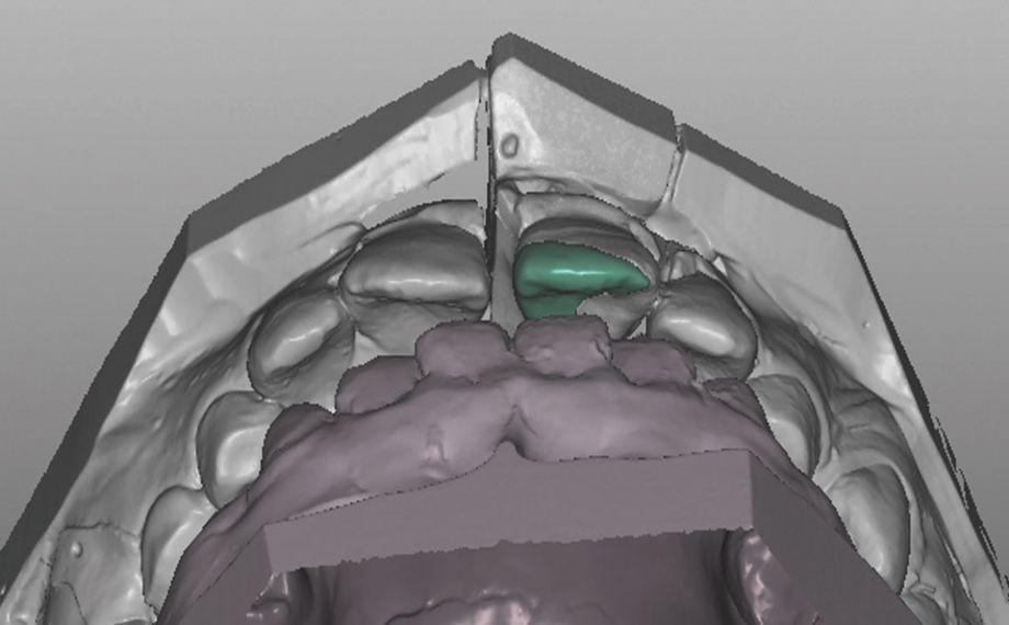 Caso clinico 1Fig. 8: Gracias al reducido grosor de capa mínimo, fue posible un diseño orientado al defecto en la zona de contacto.