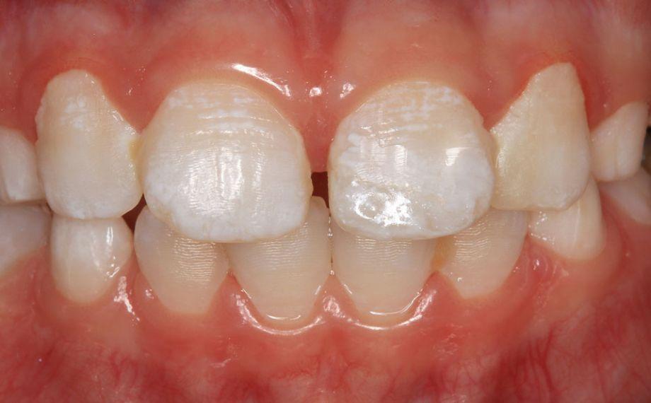 Caso clinico 1Fig. 11: Gracias al resultado preciso del fresado, la restauración se ajustó exactamente al recorrido del defecto.