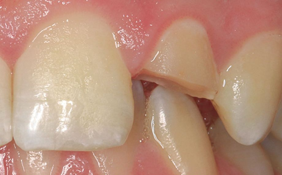 Caso clinico 2Fig. 3 La preparación marginal mínimamente invasiva posibilitó un anclaje duradero de la restauración.