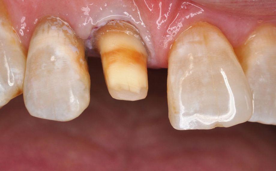 Fig. 1: Situación de partida: A fin de estabilizar el diente 11 de forma duradera, se procedió a su preparación para una corona de cerámica sin metal.