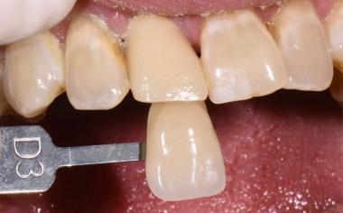 Fig. 2: El color dental básico se determinó mediante la guía de colores VITA classical A1–D4.