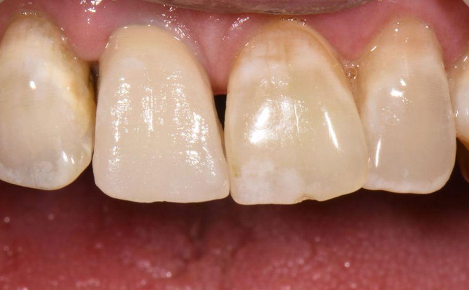 Fig. 3: El resultado tras la primera cocción de dentina durante la prueba clínica en boca.