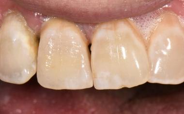 Fig. 5: La corona caracterizada y acabada durante la prueba clínica en boca.
