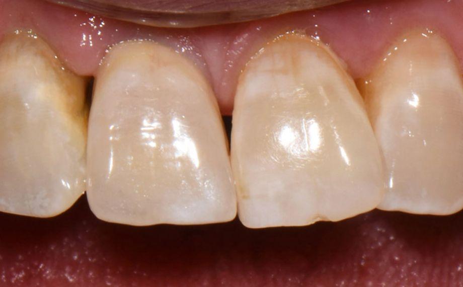 Fig. 7: La corona se integró estéticamente en la dentadura remanente natural.