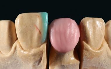 Fig. 4: El núcleo de dentina se estratificó inicialmente con VITA VM 9 BASE DENTINE 1M2.