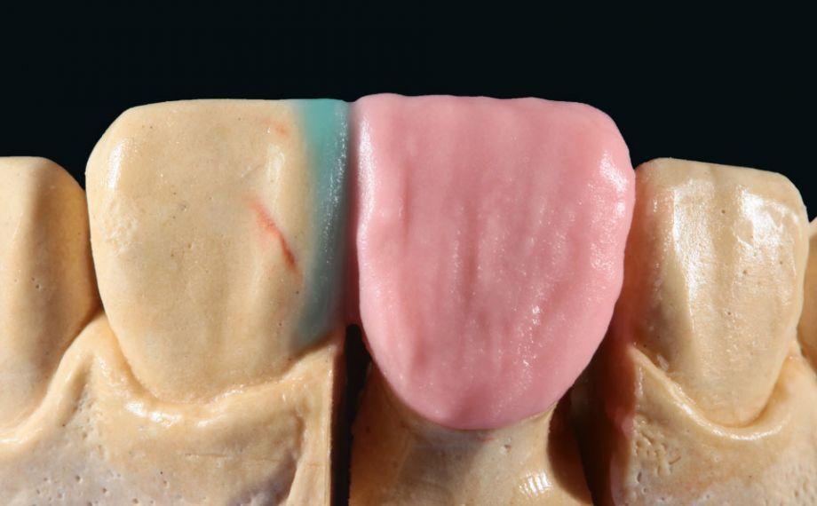 Fig. 5: Para completar el núcleo de dentina se estratificó adicionalmente con BASE DENTINE 1M1.