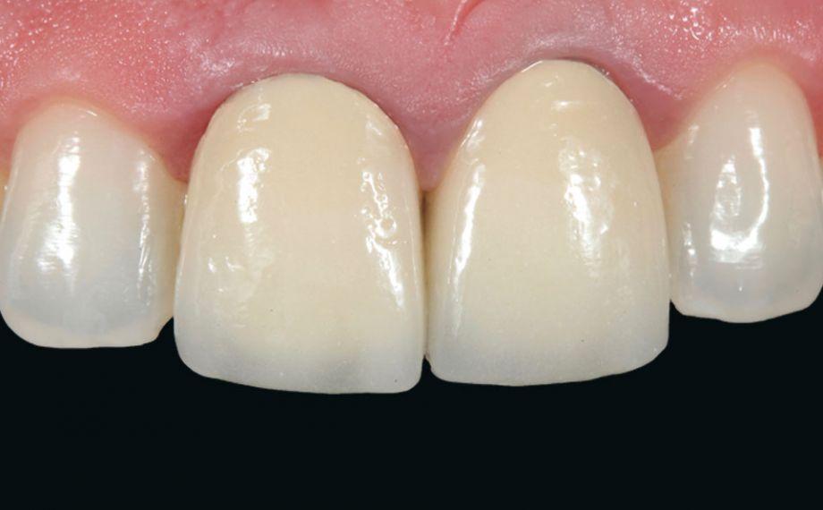 Fig. 1: En la situación de partida, las coronas metalocerámicas en los dientes 11 y 21 presentaban déficits estéticos.