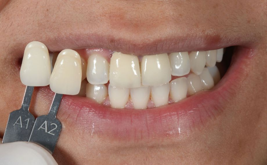 Fig. 2: El color dental básico A1 se determinó mediante la guía de colores VITA classical A1–D4.
