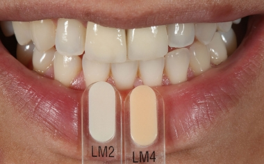 Fig. 3: Mediante las guías de colores VITA VMK Master LUMINARY se determinaron los efectos de fluorescencia.