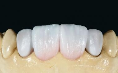Fig. 11: Se reprodujo el esmalte mediante una mezcla de ENAMEL 1 (70%) y TRANSLUCENT 4 (30%).