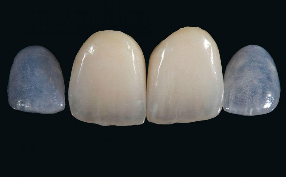 Fig. 12: El resultado final tras el acabado, la caracterización y el glaseado con VITA AKZENT Plus y el pulido.