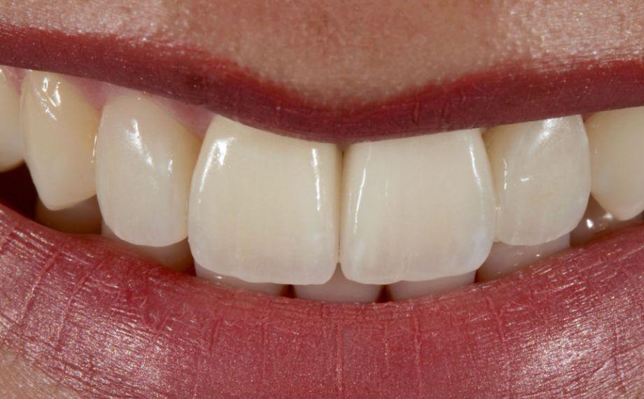 Fig. 13: Los bordes incisales simétricos armonizaban con el contorno de los labios.