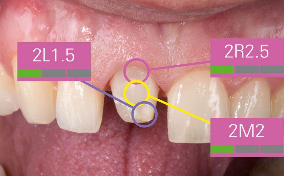 Ill. 7 : Comme la couleur du moignon influence l'effet de couleur de la restauration, une mesure en 3points a été effectuée.